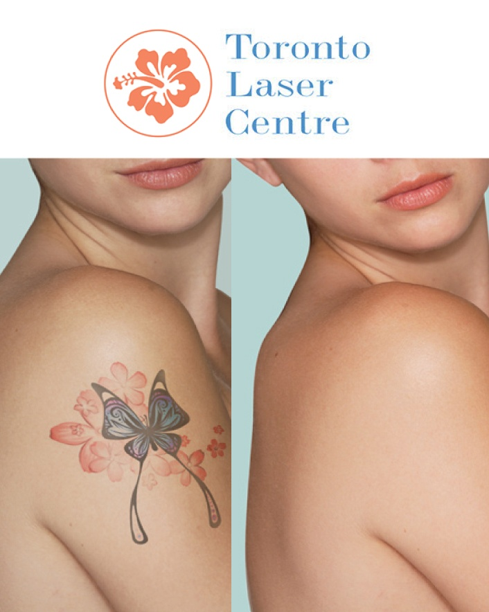 $39 for a Laser Tattoo Removal for Up to 9 Square Inches By a Registered Nurse